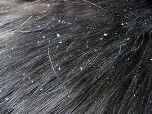 Doggy dandruff needs to be treated with the proper shampoo.